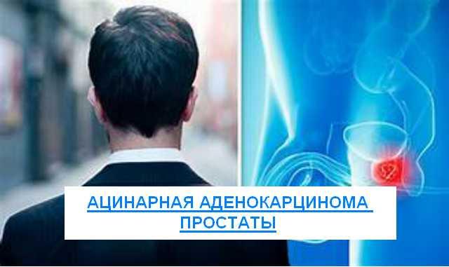 ацинарная аденокарцинома простаты