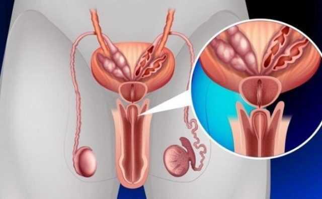 уретропростатит у мужчин симптомы лечение